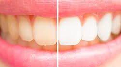 tanden-bleken 3