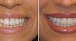 tanden_bleken